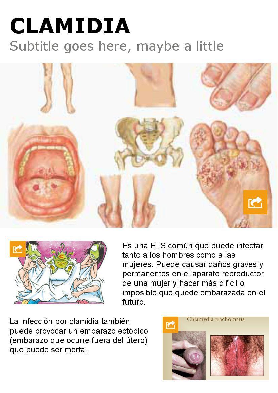 Start With The >> Clamidia by Eduardo Yañez - Flipsnack